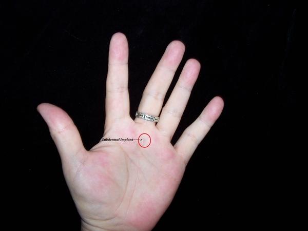 Left-Implant